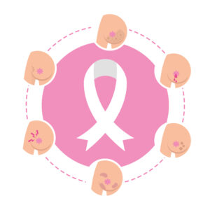 Graphic showing different signs to look out for in your breasts for breast cancer awareness month blog